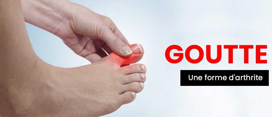 FR-Gouty-Arthritis