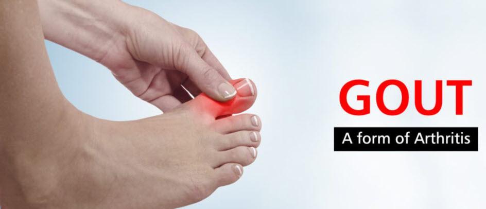 EN-Gouty Arthritis